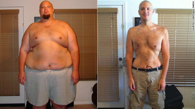 Matthew Shack dropped 265 pounds with ease -- moving more and eating less. But <a href='http://www.cnn.com/2013/11/04/health/weight-loss-matthew-shack/index.html'>keeping the weight off</a> has proven more difficult.