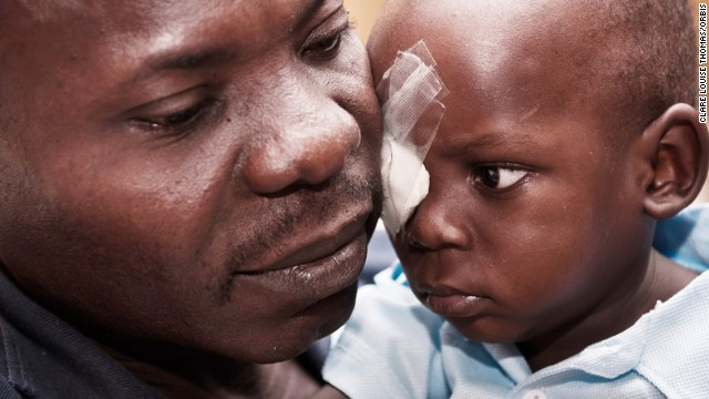 Blessjah Adegoke is embraced by his father after his eye operation.