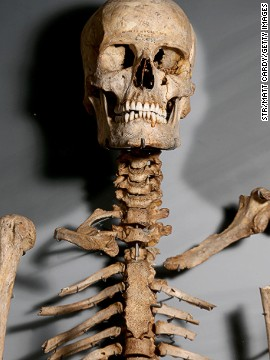The ancient Briton's skeleton shows his age more clearly.