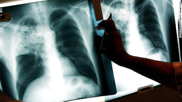 Migrant health key in TB fight