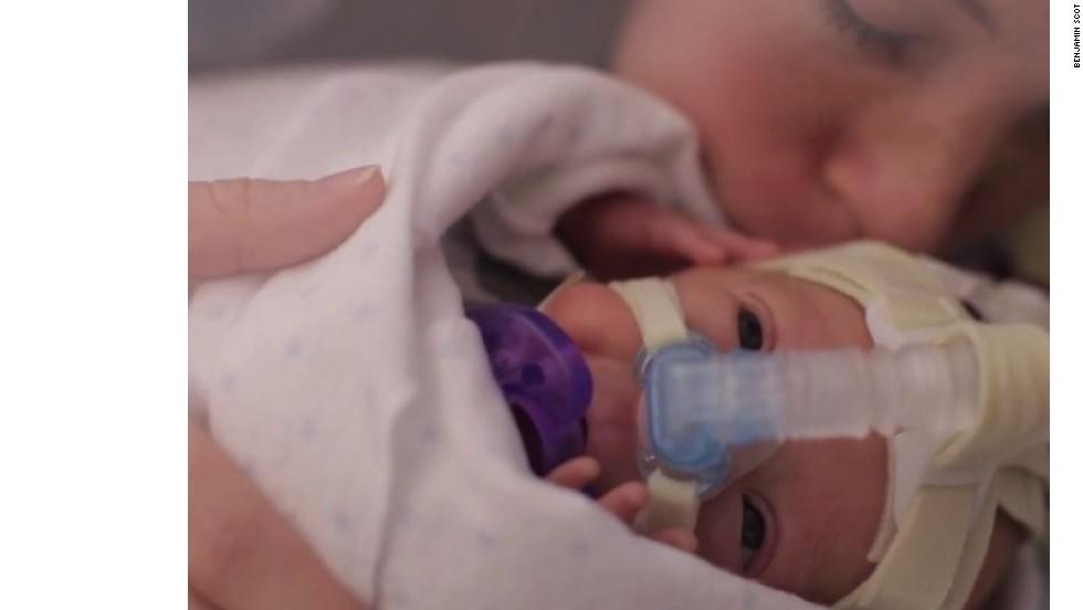 El bebé nacido 15 semanas antes de tiempo