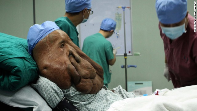 <strong>December 25:</strong> Doctors prepare to operate on Huang Chuncai, a 36-year-old farmer suffering from a rare facial tumor, in Guangzhou, China.