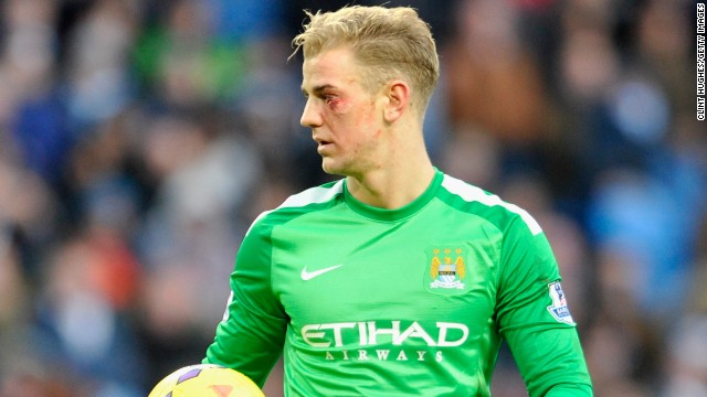 Man City keeper Joe Hart suffered a cut under his eye but stayed in the game and impressed against Crystal Palace.
