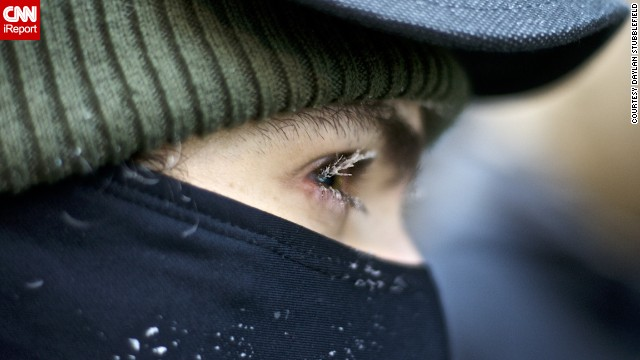 A Chicago resident's eyelashes froze on the morning of January 6.