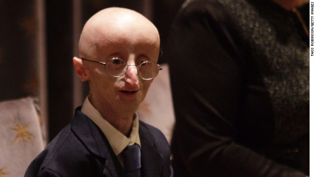 Sam Berns became well-known for being public about his life with progeria, which causes accelerated aging.