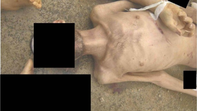An emaciated man with marks allegedly left behind beatings.