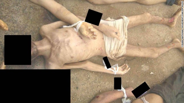 A man allegedly killed in Syrian government custody shows open wounds on his shins and ankles.