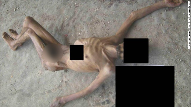 In an image from a report by three renowned war crimes prosecutors, the emaciated remains of a man allegedly killed in Syrian custody are shown. CNN received the photos partially obscured to protect the identity of the source.