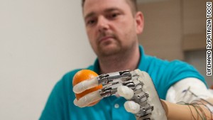 Dennis Aabo Sorensen found it harder to use the artificial hand via visual cues than sensory information.