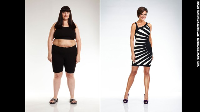 "Olivia Ward lost 129 pounds after competing in the 11th season of ""The Biggest Loser,"" which not only helped her feel healthier but also put her in first place. ""It was the most life-changing experience I have ever had the privilege of going through,"" she said after her win."