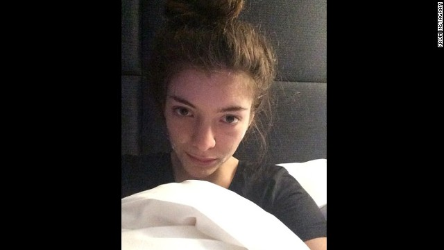 "Singer Lorde posted a makeup-less selfie on her Instagram account in February with the caption ""In bed in Paris with my acne cream on."""