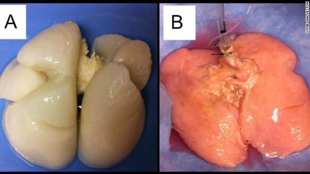 Crean un pulmón humano por primera vez en un laboratorio