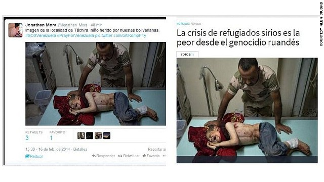 People tweeting this photo this week alleged that it showed a child injured in the state of Tachira. This is actually an image of a child wounded in the Syrian conflict. The United Nations <a href='http://www.cnn.com/2013/12/12/world/meast/syria-civil-war/'>confirmed that chemical weapons were used </a>against civilians, including children, in August.