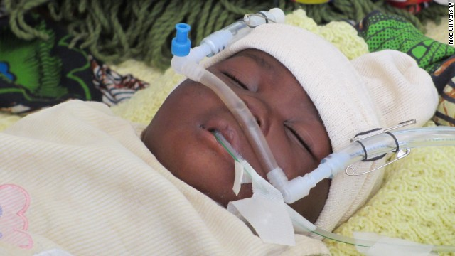 A newborn breathes with help from the aquarium pump bubble CPAP machine. To keep the tubes in place, doctors and nurses use safety pins and rubber bands to attach them to a knit hat on the baby's head, which is standard practice in many neonatal wards.