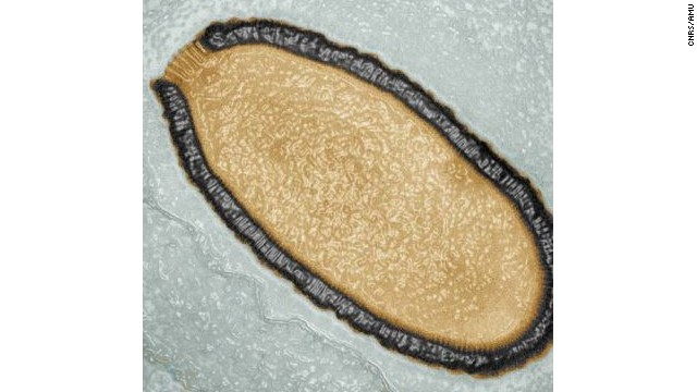 A 30,000-year-old virus, Pithovirus, has been unearthed in the frozen ground of Siberia.