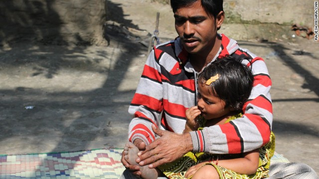 Rukhsar's father says he blames himself for not getting his daughter vaccinated against polio.