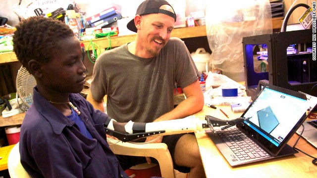 Ebeling traveled to Sudan in October 2013, and used a 3-D printer to fabricate a prosthetic arm for Daniel.