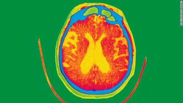 5 cosas que no sabías sobre el Alzheimer