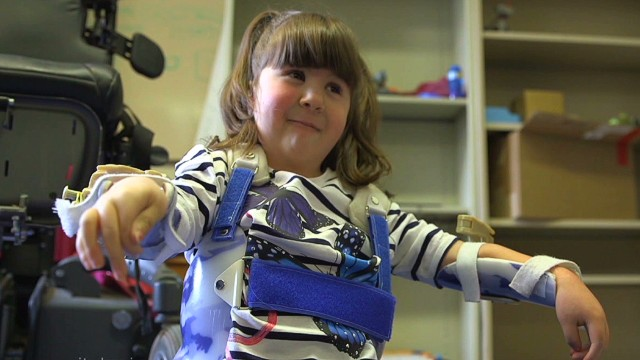 The Wilmington Robotic Exoskeleton, or WREX, was developed at Dupont Children's Hospital in Wilmington, Delaware, U.S.A.