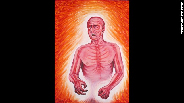 """Fever"" is one of several portrayals by Kevorkian of ""various medical signs and symptoms and social commentaries,"" according to Kevorkian. ""This one depicts the great discomfort of intense bodily heat,"" he wrote. ""The inferno is internal, and in some tragic cases even the will to live is charred."""