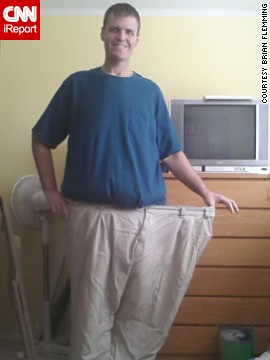 Flemming went from a size 60 waist to a size 38. He still has about 30 pounds of excess skin around his waist and is trying to save money for the surgery to have it removed.