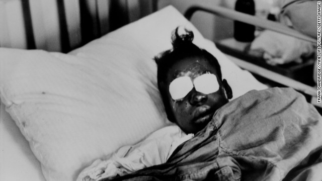 Sarah Jean Collins, 12, lies in bed after being blinded by the dynamite that killed her sister in the bombing of a Birmingham church in September 1963. Four African-American girls were killed in the blast.