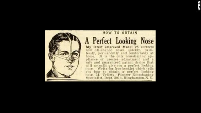 The Trados nose shaper