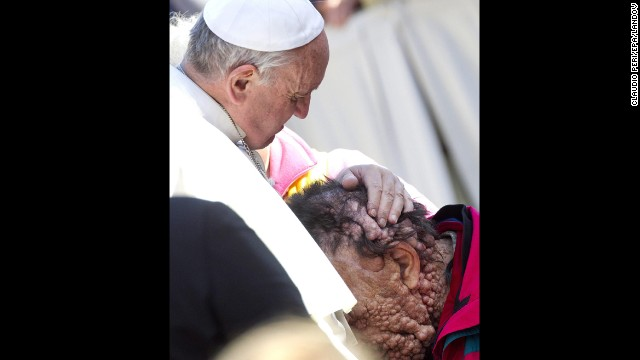 Pope Francis embraced Vinicio Riva, a disfigured man who suffers from a non-infectious genetic disease, during a public audience November 6 at the Vatican. Riva then buried his head in the Pope's chest.
