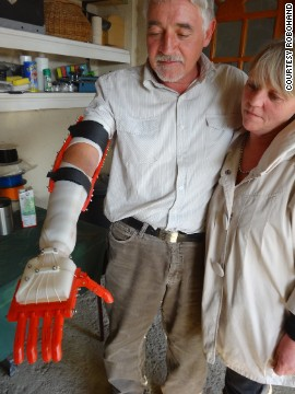 The prosthetics are anatomically driven -- meaning their movements are controlled by the user -- and are much cheaper than conventional devices.
