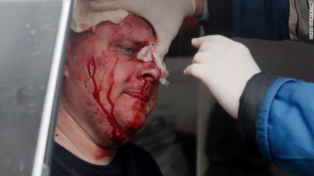 A Ukrainian police officer receives medical care after being attacked at the police station in Horlivka on April 14.