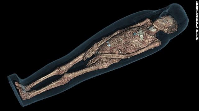 Naked pelvic bone pics