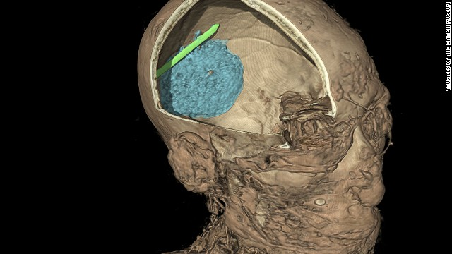 The scan also revealed that Egyptian embalmers botched the job. A chunk of his brain (in blue) was left in the skull, along with a piece of the spatula used to extract the organ (in green).