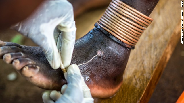 guinea worm and people relationship