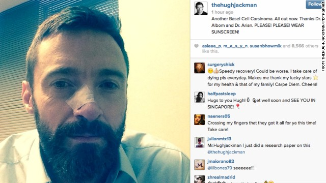 Hugh Jackman<a href='http://instagram.com/p/nwRi4PihGR/' target='_blank'> took to Instagram</a> on May 8 for the second time in six months to share a photo of his bandaged nose as a result of removing basal cell carcinoma and extolling the virtues of sunscreen.