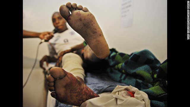 A blast victim shows his wounds at a Nairobi hospital on May 16.