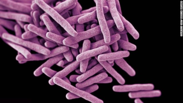 This rendering shows drug-resistant <i>Mycobacterium tuberculosis</i> bacteria, which cause TB. When people with lung TB cough, sneeze or spit, they propel TB bacteria into the air. <!-- --> </br>A third of the world's population has latent TB, which means they have been infected by TB bacteria but are not (yet) ill and cannot transmit the disease.