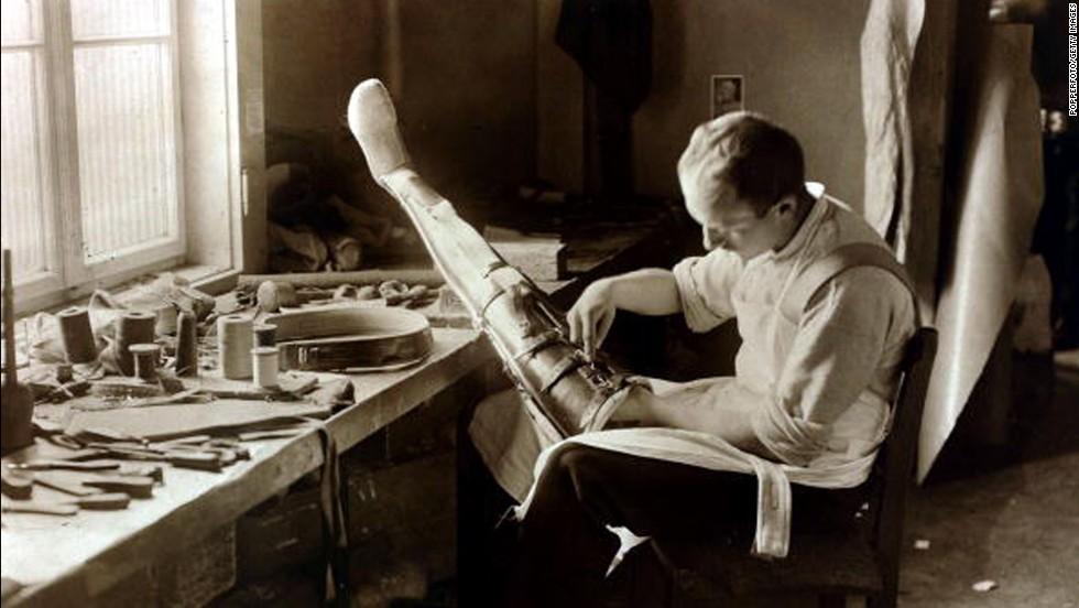 Soldados de la I Guerra Mundial con prótesis