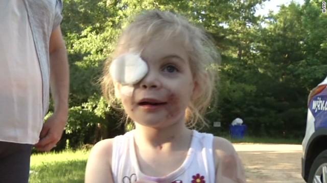 KFC dice que no hay evidencia que haya discriminado a una niña por su cara