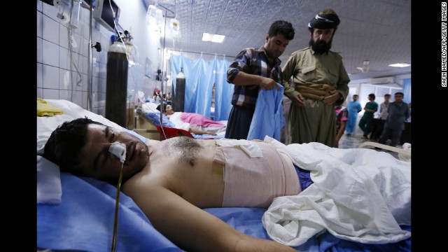 A Kurdish Peshmerga fighter injured in clashes with ISIS lies in a hospital in Irbil on June 18.