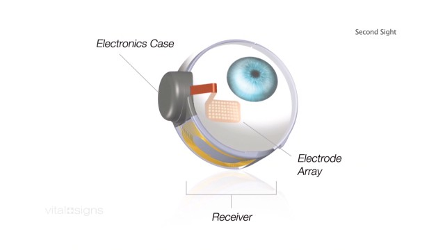 Visual information from the camera is transmitted wirelessly to electrodes on the artificial retina, where it is converted to electrical pulses.