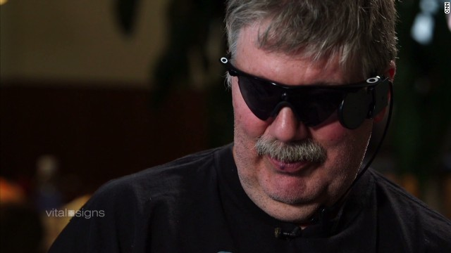 Roger Pontz was left completely blind by retinitis pigmentosa. In January 2014 he became the second person in the United States to get the implant.