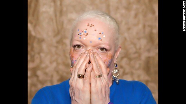 Vitiligo affects roughly 100 million people worldwide, according to the <a href='http://vrfoundation.org/' target='_blank'>Vitiligo Research Foundation</a>. Pictured, Teri Martin.