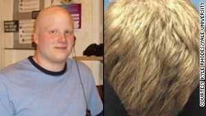Drug gives bald man full head of hair