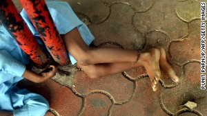 Disabled boy tied to Mumbai bus stop