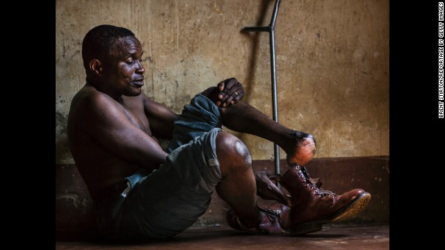 Matteo Muxambo lost his foot in 1995. He was walking along a trail near the Mozambique-Zimbabwe border when he stepped off the path to allow a woman to pass. He was blown back by an anti-personnel mine, which took off his foot and severely injured the passing woman.