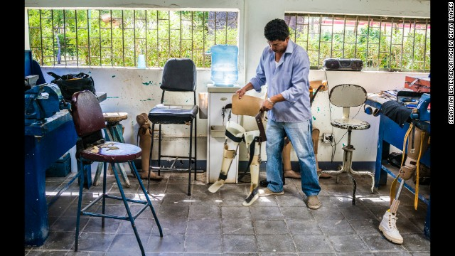 A technician works in the rehabilitation center at the Aldo Chavarria Hospital in Managua.