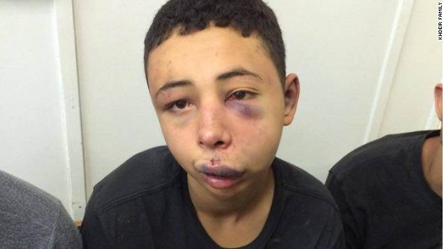u s teen beaten by israeli police to return home. Black Bedroom Furniture Sets. Home Design Ideas