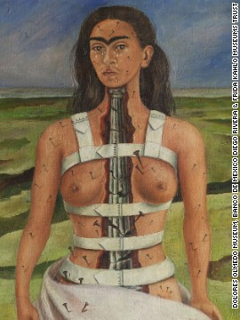"As a teenager, Kahlo suffered a horrific traffic accident which left her with lifelong health problems. Many of her self-portraits depict her in pain, such as 1944's ""The Broken Column."""