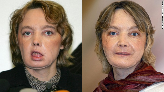 In 2005, Frenchwoman Isabelle Dinoire, 39, was the first person to undergo a partial face transplant, after being mauled by her dog. She is pictured a few months after her surgery, and a year later.