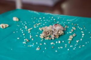 Le sacan 232 'dientes' a adolescente en Bombay